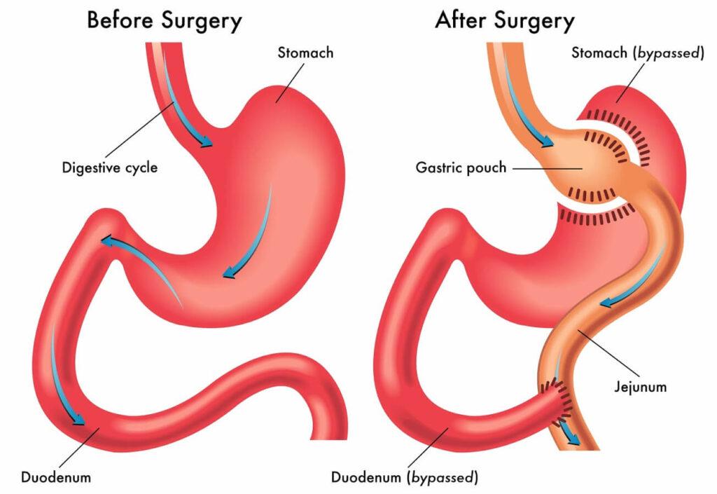 Gastric bpass surgery